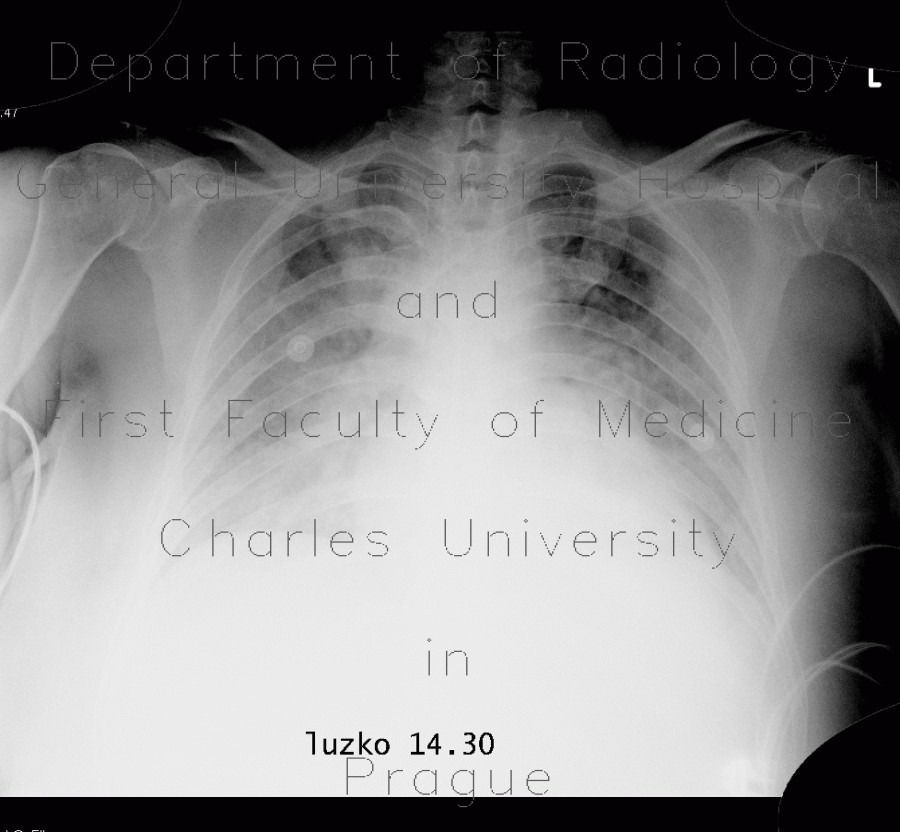 Radiology image - Pumonary edema, pneumonia: Thorax, Lung, Mediastinum and pleural cavity: X-ray - Plain radiograph