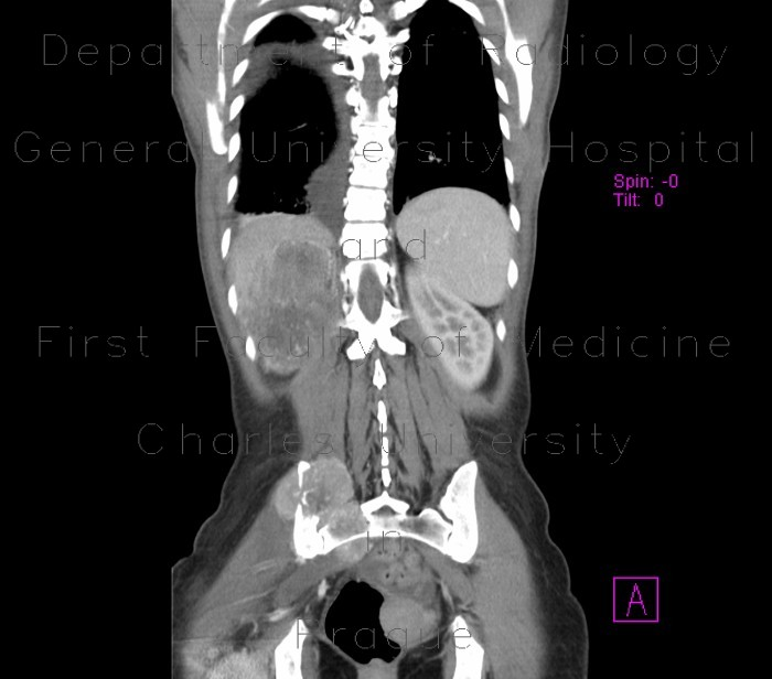 Radiology image - Renal cell carcinoma, metastasis into pelvis: Abdomen, Spine and Axial, Bone, Kidney and adrenals: CT - Computed tomography