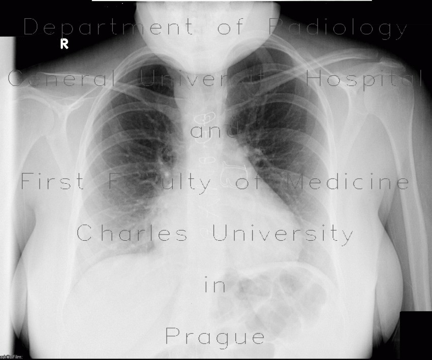 Radiology image - Replacement of pulmonary valve, Fallot