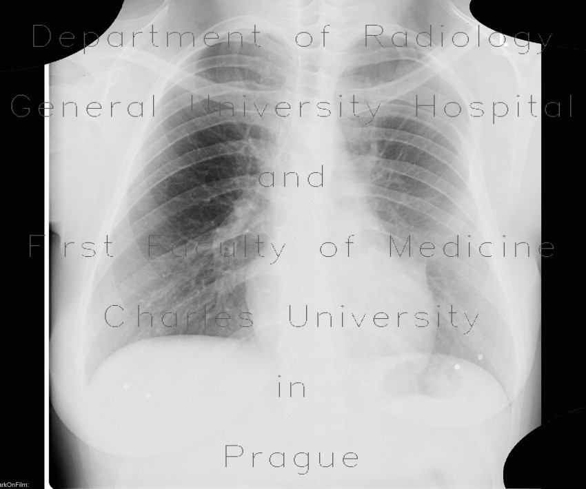 Radiology image - Rib anomally: Thorax, Bone: X-ray - Plain radiograph