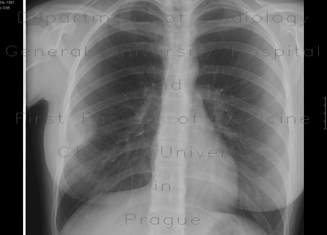 Radiology image - Rib tumour: Thorax, Bone, Mediastinum and pleural cavity: X-ray - Plain radiograph