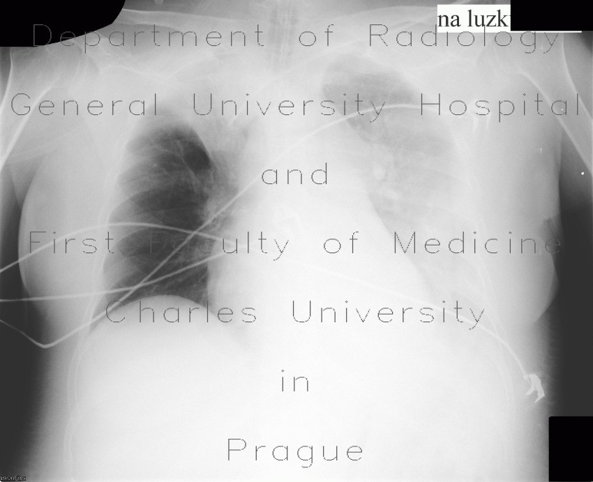 Radiology image - Right upper lobe atelectasis, pleural effusion on supine radiograph: Thorax, Lung, Mediastinum and pleural cavity: X-ray - Plain radiograph