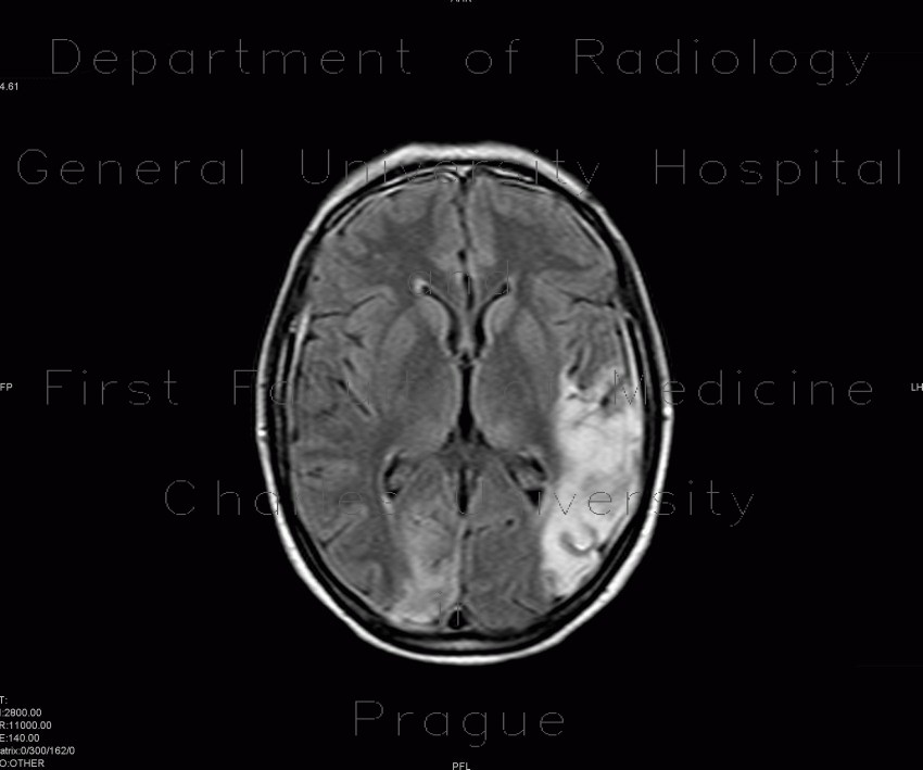 Radiology image - SLE, systemic lupus erythematodes, cerebral ischemia: Brain, Brain: MRI - Magnetic Resonance Imaging