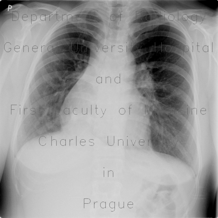 Radiology image - Scimitar syndrom, anomalous return of pulmonary vein: Thorax, Vessels: X-ray - Plain radiograph