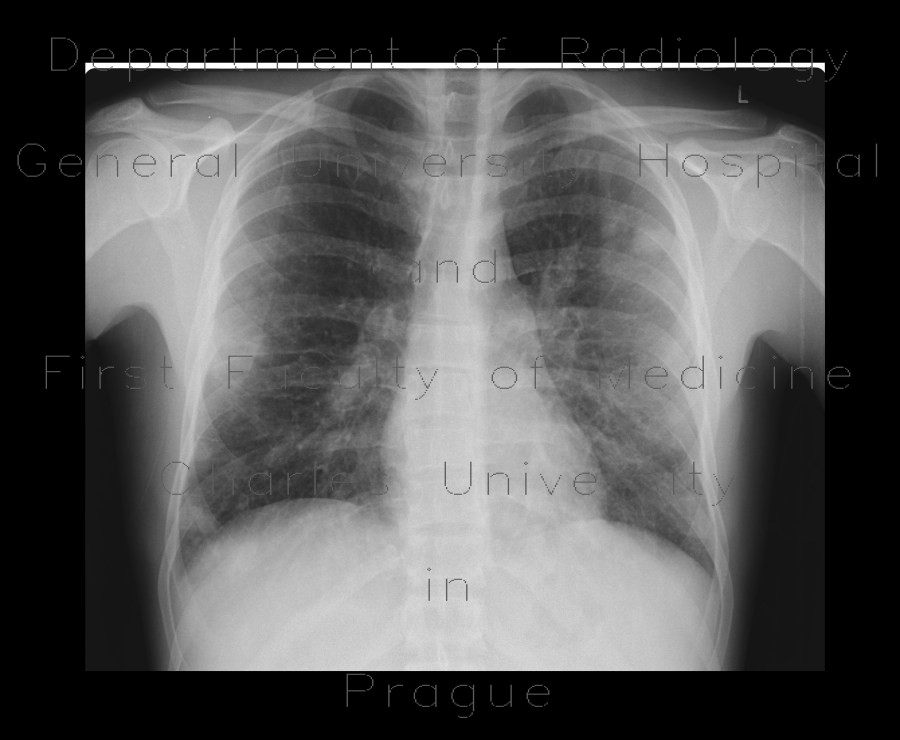 Radiology image - Septic emboli from infective endocarditis, lung and brain: Brain, Brain, Lung: X-ray - Plain radiograph