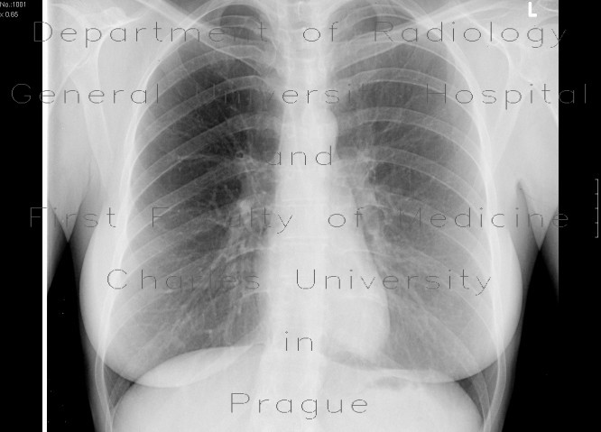 Radiology image - Septic emboli, lung: Thorax, Lung: X-ray - Plain radiograph