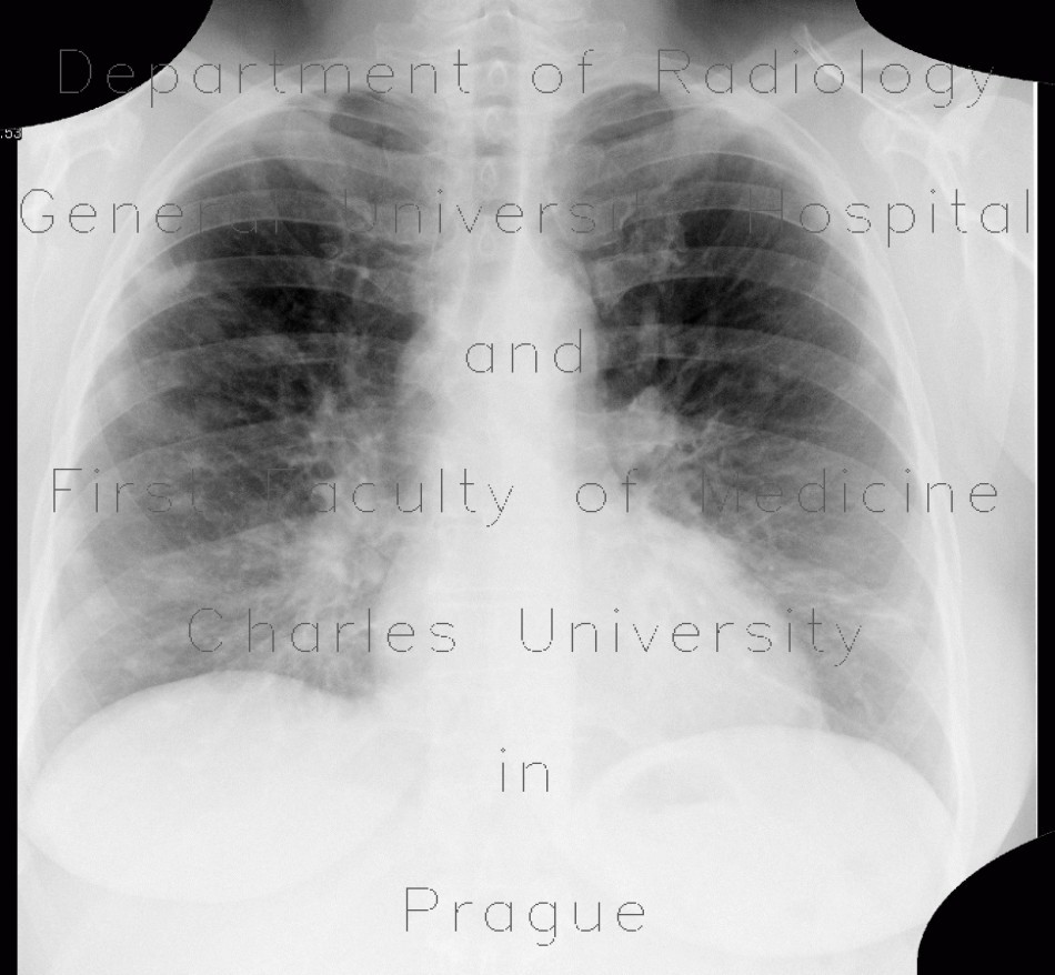 Radiology image - Silicosis, pulmonary silicosis: Thorax, Lung, Mediastinum and pleural cavity: X-ray - Plain radiograph