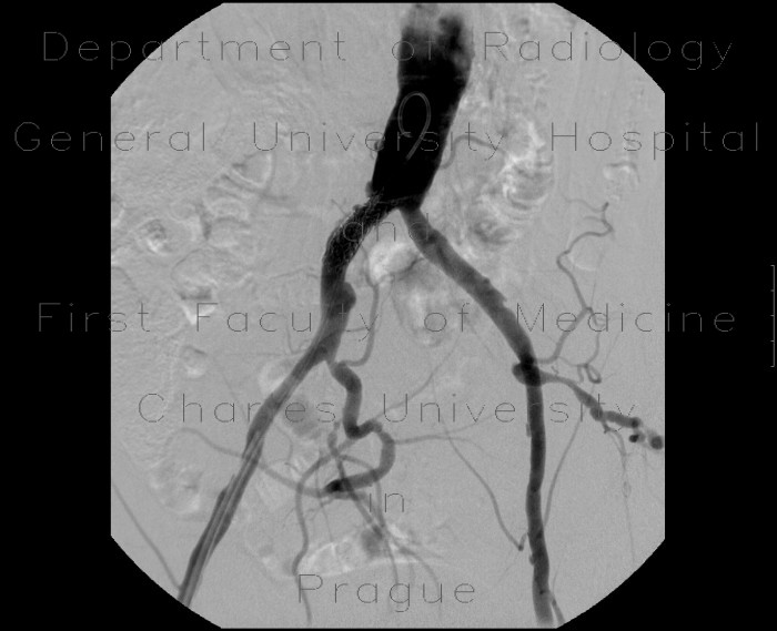 Radiology image - Stenosis of common iliac artery, stent: Abdomen, Vessels: AG - Angiography