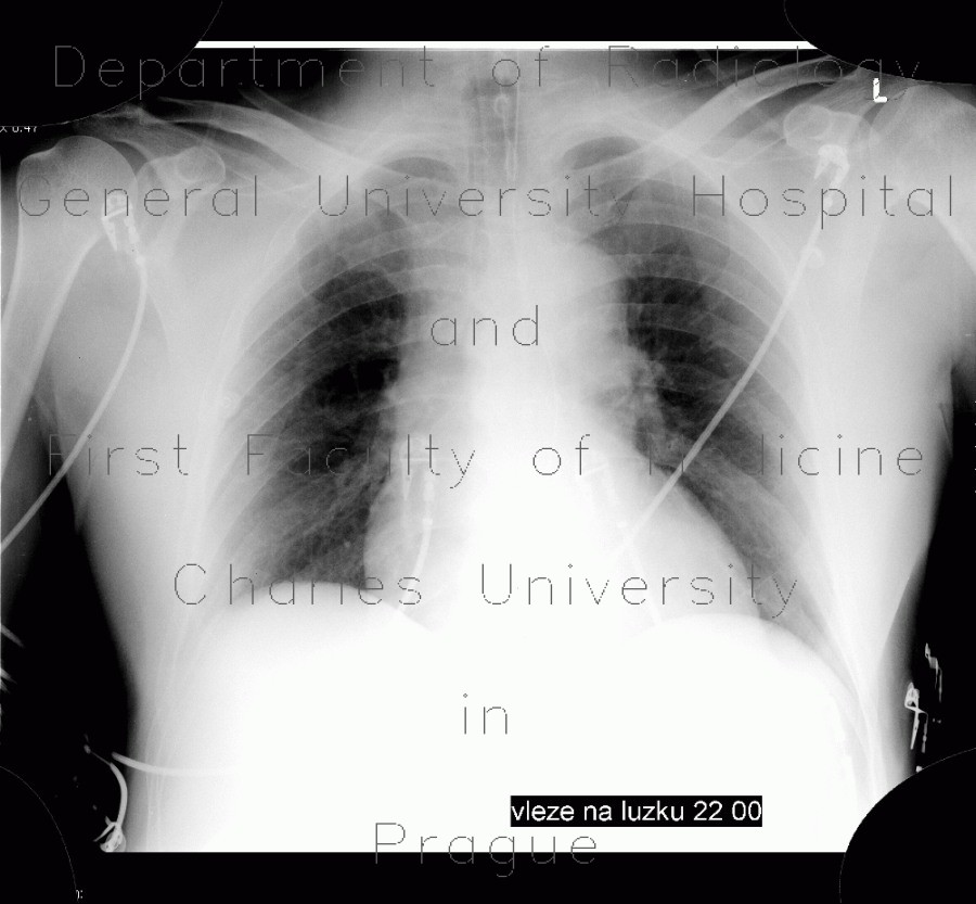 Radiology image - Stenosis of trachea, tracheal intubation: Thorax, Lung, Mediastinum and pleural cavity: X-ray - Plain radiograph