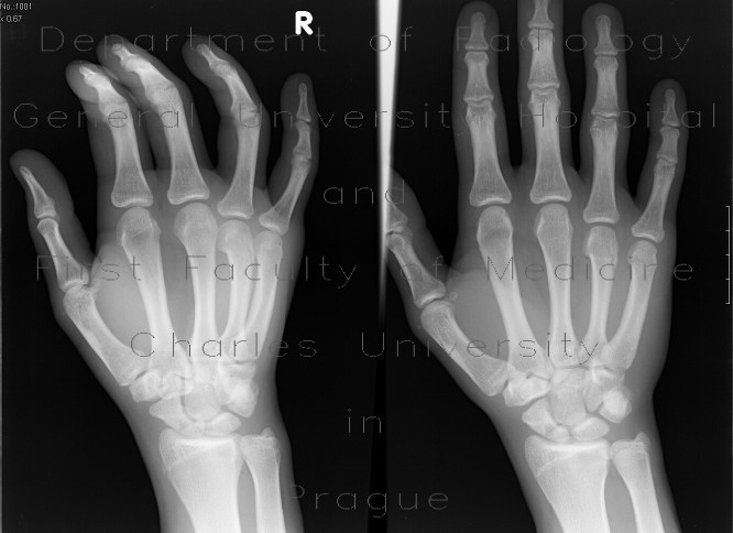 Radiology image - Subcapital fracture of the fourth metacarpal bone: Extremity, Bone: X-ray - Plain radiograph