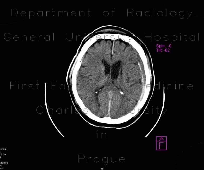 Radiology case: Subdur...