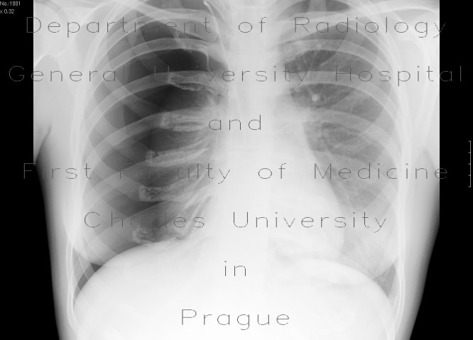 Radiology image - Tension pneumothorax: Thorax, Lung: X-ray - Plain radiograph