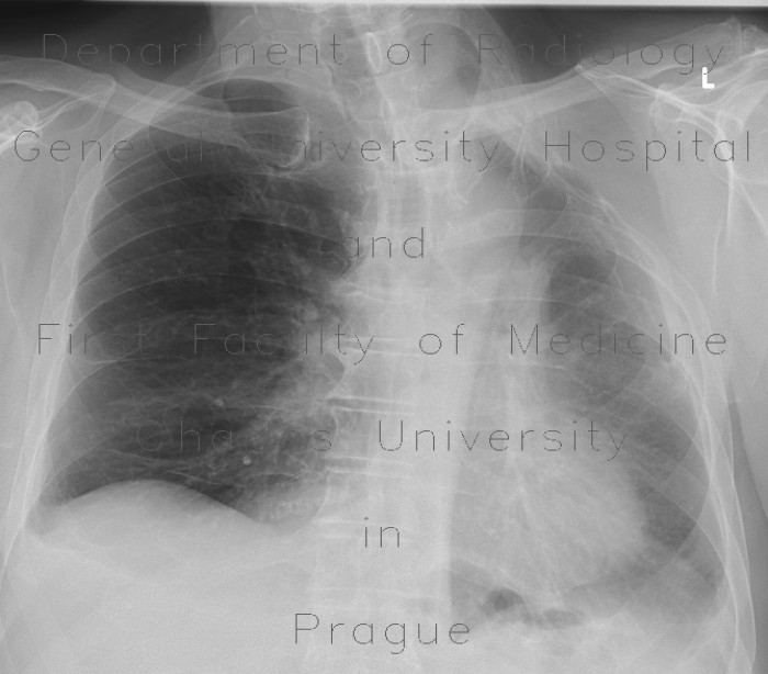 Radiology image - Thoracoplasty: Thorax, Mediastinum and pleural cavity: X-ray - Plain radiograph