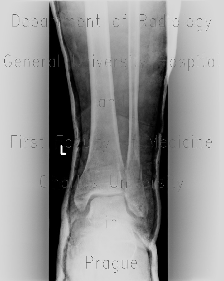 Radiology image - Thrombosis of muscular veins of the calf, fracture of the fibular ankle and plaster cast: Extremity, Bone, Vessels: X-ray - Plain radiograph