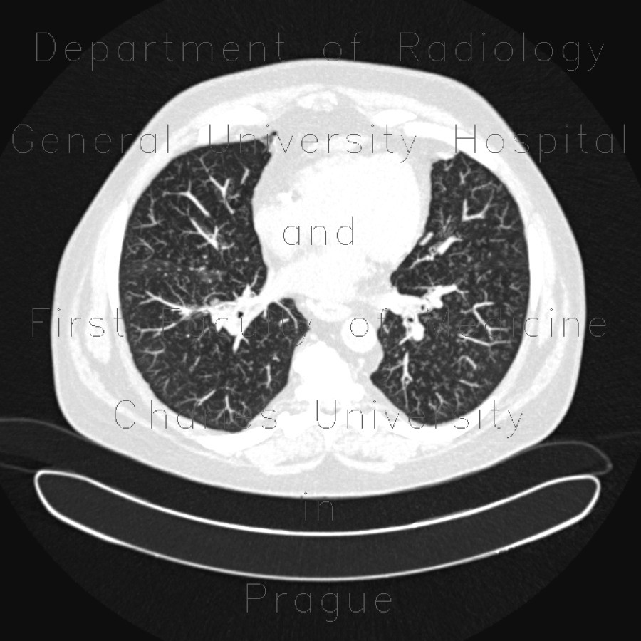 Radiology image - Tree-in-bud pattern: Thorax, Lung: CT - Computed tomography