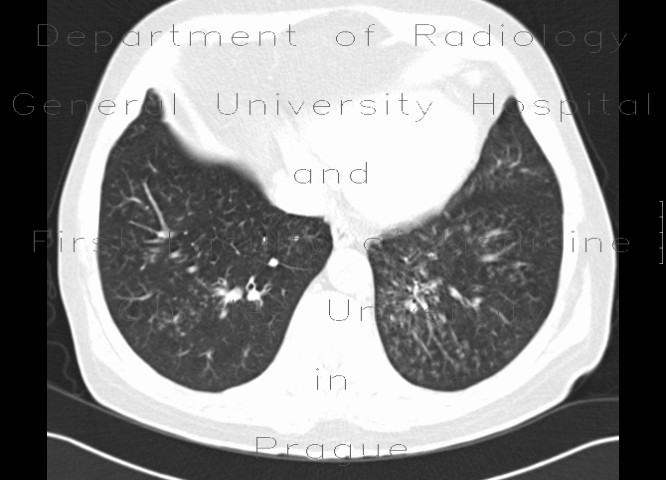 Radiology image - Tree in bud pattern, infectious bronchiolitis: Thorax, Lung: CT - Computed tomography