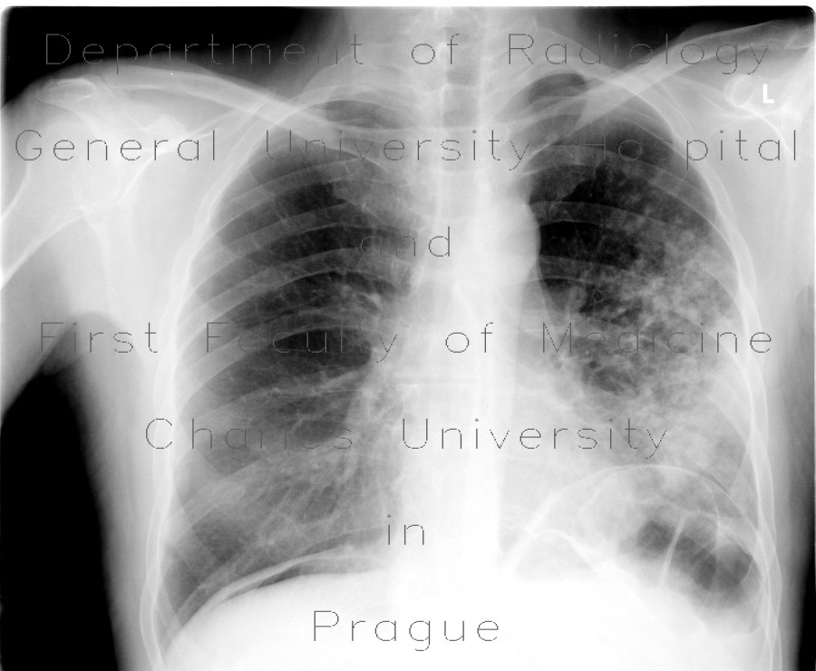 Radiology image - Tuberculosis, TB, endobronchial spread, tree in bud, cavity: Thorax, Lung: X-ray - Plain radiograph