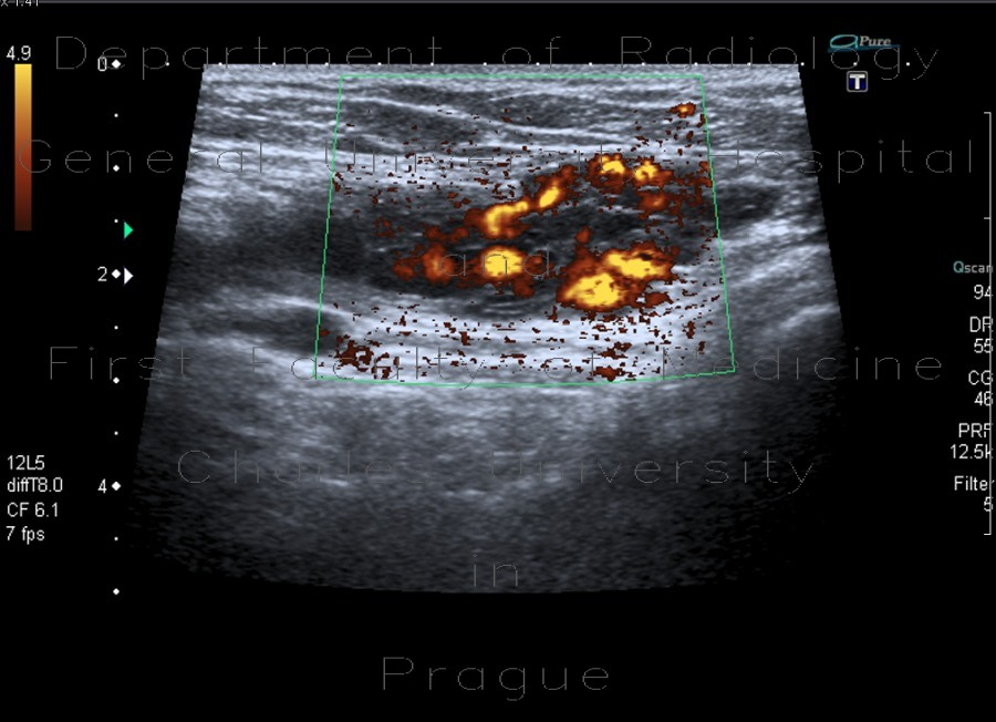 Radiology image - Varices in groin, inguinal canal: Abdomen, Soft tissue: US - Ultrasound