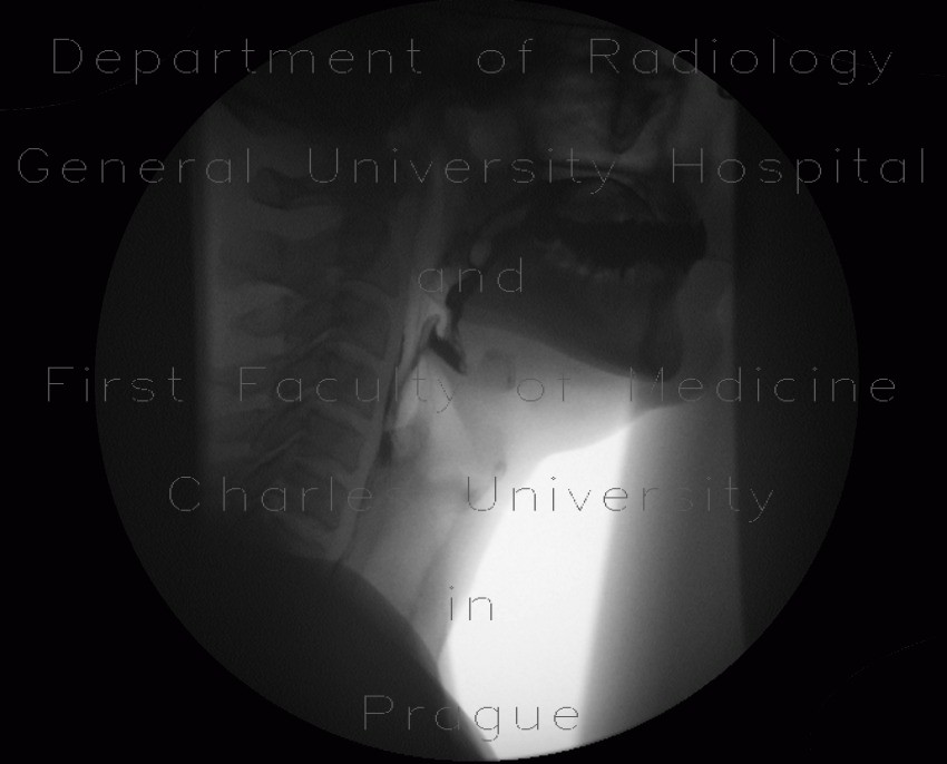 Videofluoroscopic swallow study and dysphagia