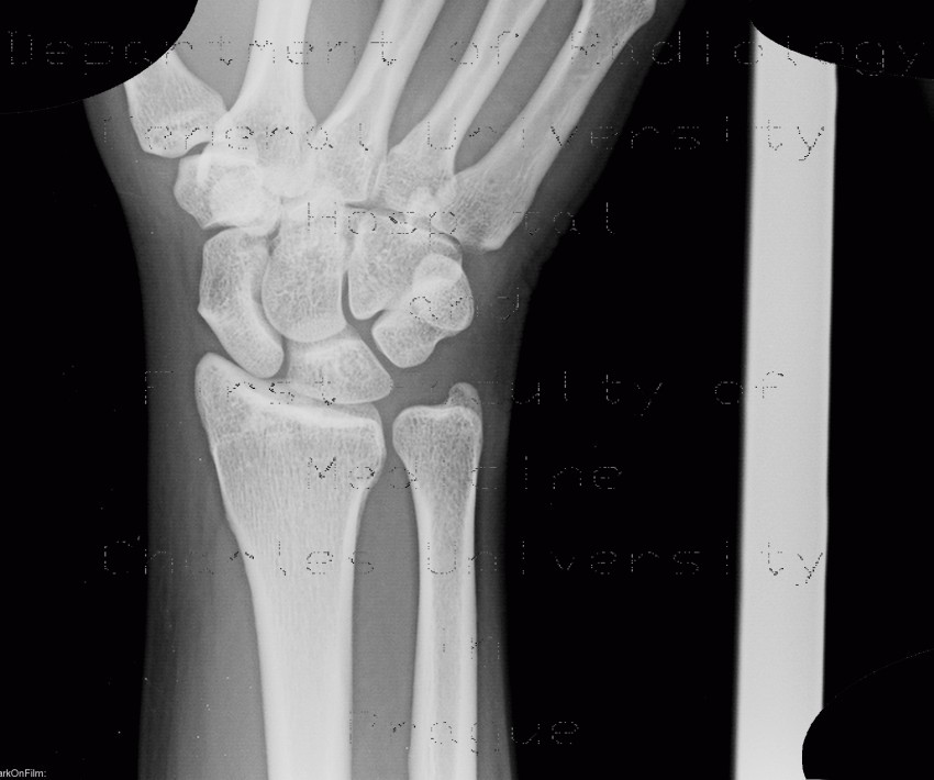 Radiology image - Wrist, normal x-ray: Extremity, Bone: X-ray - Plain radiograph