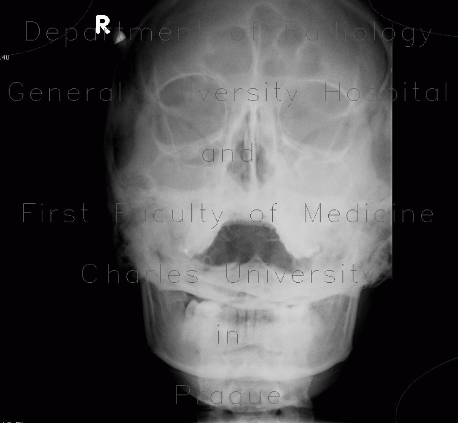 Radiology image - pansinusitis, sinusitis, acute, Water
